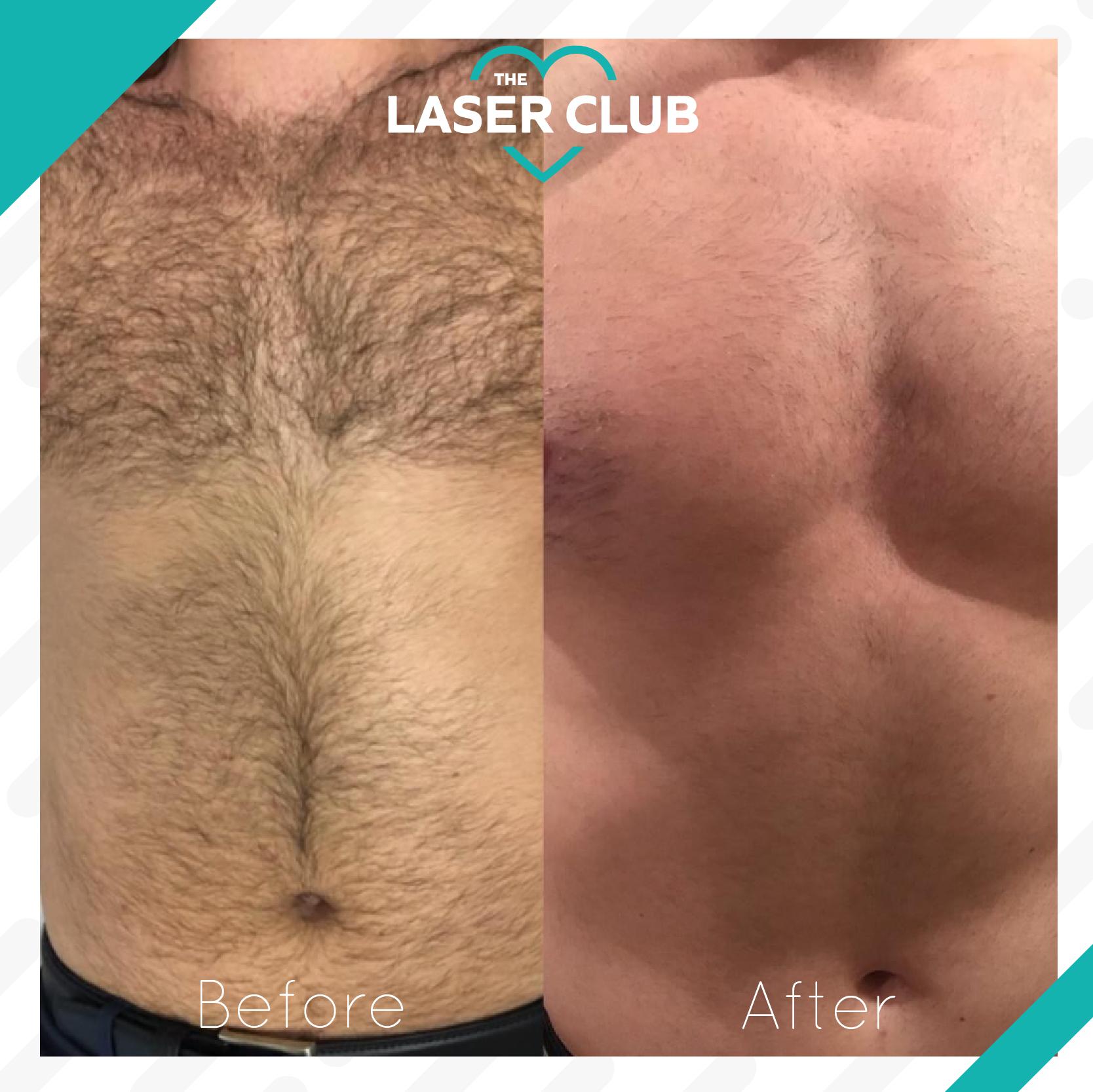 Laser-Club-feed10-10-1