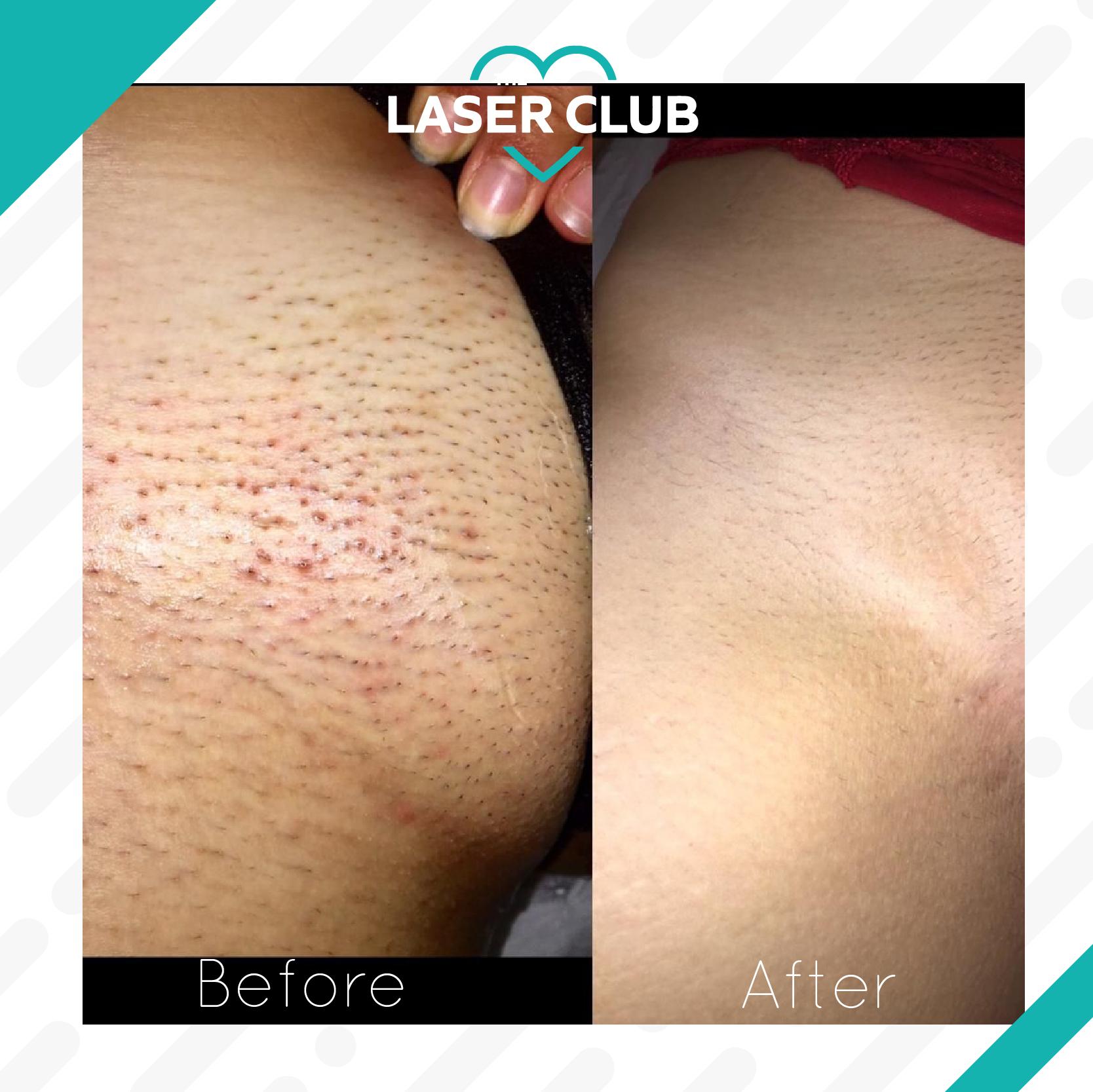 Laser-Club-feed11-10-1